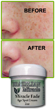Age Spot Treatment